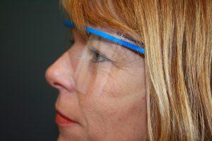 """Veiligheidsbril """"Safevieuw""""+ 1 glas"""